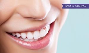 White&Beauty Gdańsk: Wybielanie zębów akceleratorem halogenowym z przeglądem od 199 zł w White&Beauty Gdańsk