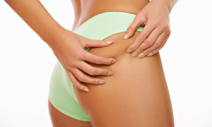 Body Contouring Treatments, New Velashape Iii Cellulite-reduction At Ultimate Beauty Laser Spa (up To 84% Off)