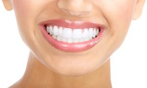 CLIDEENTAL: Limpieza bucal completa con pulido y fluorización por 12 € y con 1, 2, 3 o 4 empastes desde 24 € en Clideental