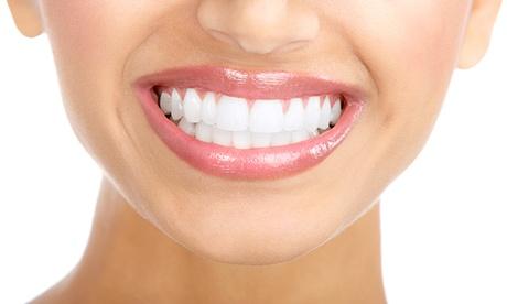 Limpieza bucal con fluorización y revisión con hasta 4 empastes desde 12,90 € en Clideental