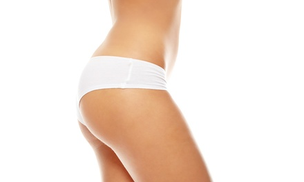 One, Two or Three Areas of Cryogenic Lipolysis at Harley Laser Specialists (Up to 15% Off)
