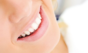 Gary H. Mikels, DMD: $190 for a Zoom2 Teeth-Whitening Treatment from Gary H. Mikels, DMD ($600 Value)