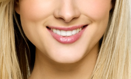 Zoom! Teeth-Whitening Treatment with Optional Dental Checkup at Advanced Dentistry For U (Up to 83% Off)