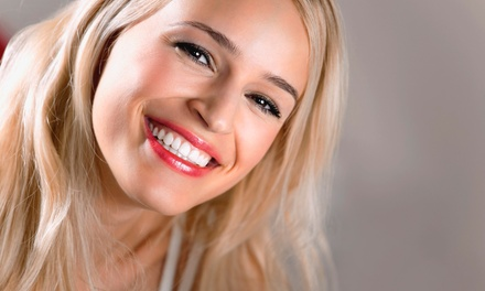 One-Hour Laser Teeth-Whitening Session with Optional Take-Home Pen at Maui Whitening - Orlando (Up to 57% Off)