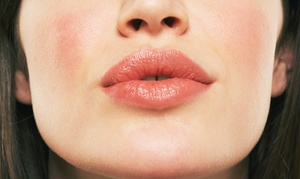 Soul Cosmetic Clinic: Dermal Fillers for Lips ($329) or Cheeks ($599) at Soul Cosmetic Clinic