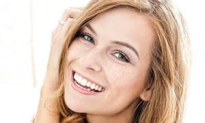 Wallisdown Dental Practice: Choice of Cfast Clear Braces on One or Both Arches at Wallisdown Dental Practice (Up to 62% Off)