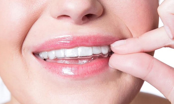 SmileDirectClub: $59 for an At-Home Evaluation Kit for Invisible Aligner Treatment from SmileDirectClub ($95 Value)