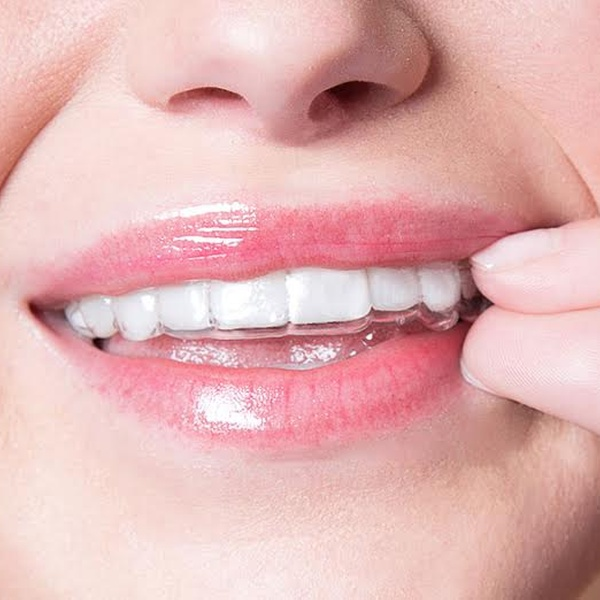 Invisible Aligner Package Smiledirect Club Groupon