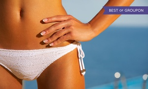 Six Laser Hair-removal Treatments On A Small, Medium, Or Large Area At Metro Laser (up To 81% Off)