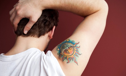 Laser Tattoo-Removal Treatment for 4, 6, or 8 Square Inches at RSVP Med Spa (Up to 60% Off)