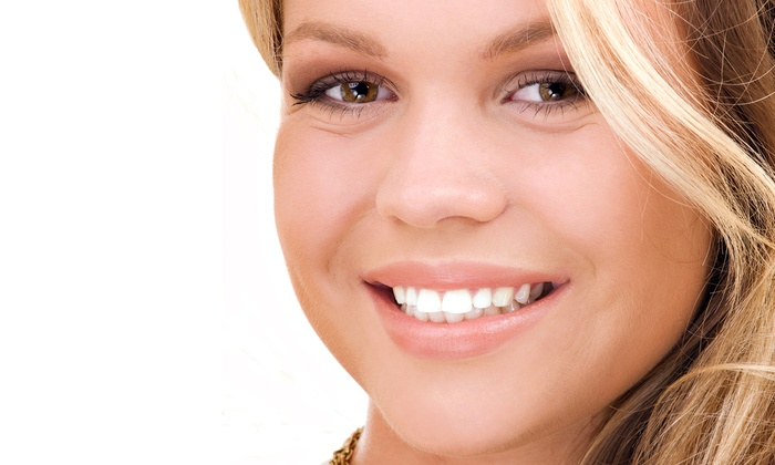 Vivid Smiles Express - Vivid Smiles Express: One or Two 30-Minute Teeth-Whitening Sessions at Vivid Smiles Express (43% Off)
