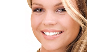 Vivid Smiles Express: One or Two 25-Minute Teeth-Whitening Treatments at Vivid Smiles Express (Up to 61% Off)
