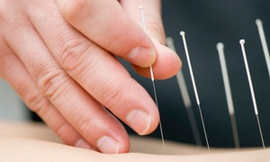 Stellar Physical & Occupational Therapy & Acupuncture: Acupuncture and Optional MassageatStellar Physical & Occupational Therapy & Acupuncture (Up to61%Off)