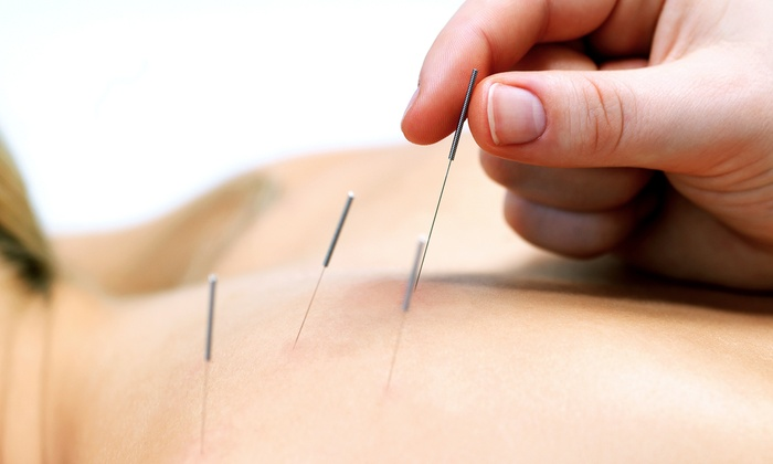 The Well-Being Center - St Vincent - Greenbriar: One, Three, or Six 60-Minute Acupuncture Treatments at The Well-Being Center (Up to 69% Off)