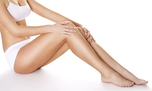 Katie Brandner: Three Laser Hair-Removal Sessions on Small, Medium, or Large Area with Katie Brandner (Up to 74% Off)