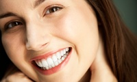 One or Two Dental Porcelain Veneers from Palmers Green Dental & Implant Clinic (43% Off)