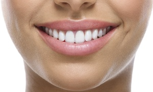 Pearly Whites Express: $33 for a 45-Minute Teeth-Whitening Treatment with a Take-Home Tray at Pearly Whites Express ($154 Value)