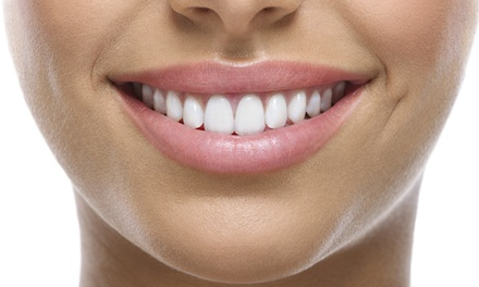 $33 for a 45-Minute Teeth-Whitening Treatment with a Take-Home Tray at Pearly Whites Express ($154 Value)