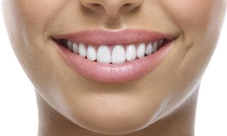 1, 2 o 4 implantes dentales de titanio con pilar y corona de metal porcelana desde 499 € en Clínica Sonridental Alhaurín Oferta en Groupon