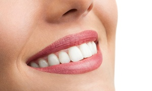 Studio Dentistico Lecce: Visita odontoiatrica con pulizia denti, smacchiamento airflow e sbiancamento LED