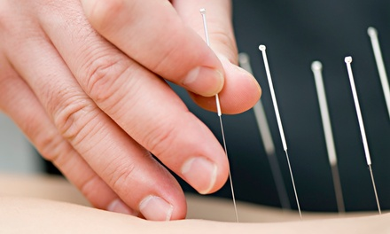 One, Three, or Six Acupuncture Treatments with Initial Assessment at Rejuvenate Center (Up to 71% Off)