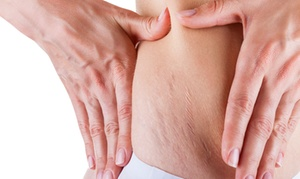 THE Medical Spa-A: Five IPL Stretch Mark Removal Treatments for $398 from THE Medical Spa ($479 Value)