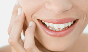 Features: Dentist Examination, Scale and Polish Including X-rays at Features Dentistry (74% Off)