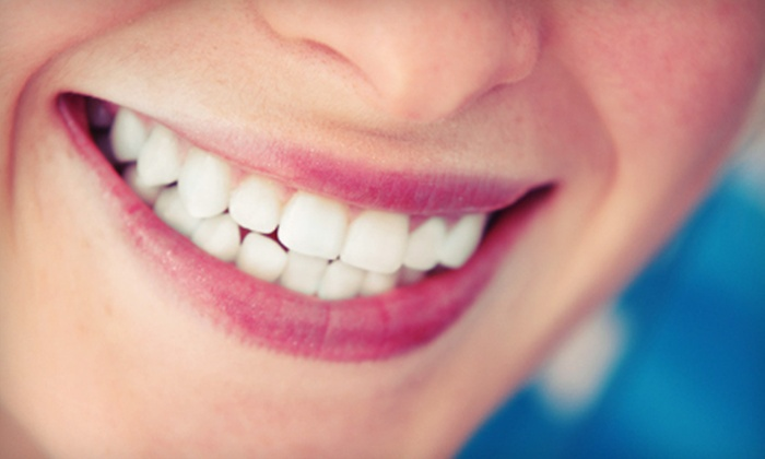David Jou, DDS - Bascom-Forest: Dental Checkup with Exam, X-ray, and Cleaning with Optional Take-Home Whitening Kit from David Jou, DDS (88% Off)