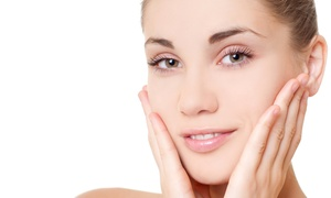 South Bay Med Spa: Two, Four, or Six Alma IPL Photofacial Treatments at South Bay Med Spa (Up to 79% Off)