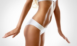 TruShape: 10 or 20 Whole-Body Vibration Treatments at TruShape (Up to 84% Off)