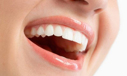 image for One or Two Dental Implants with Crown at Dentspa Dental Health (68% Off)