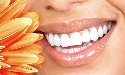 15- or 30-Minute Teeth-Whitening Session at The HoneyComb Cottage (Up to 58% Off)