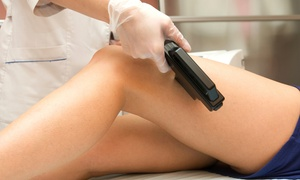Queens Laser Hair Removal: Six Laser Hair-Removal Treatments on a Small, Medium, or Large Area at Queens Laser Hair Removal (Up to 80% Off)