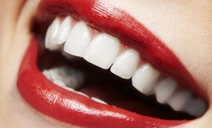 Dr. Jacquie Smiles: One or Two Zoom! Teeth-Whitening Treatments at Dr. Jacquie Smiles  (Up to 85% Off)