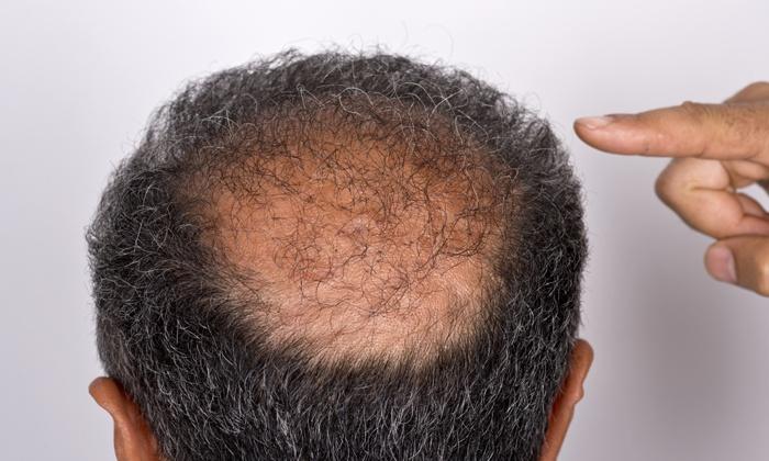 Scalpa Center - Middleton: $385 for $700 Worth of Hair Restoration — Scalpa Center