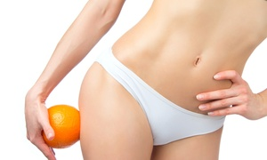 Body Vitality Studio: Laser Lipo Sessions for Men or Women from R400 at Body Vitality Studio (Up to 70% Off)