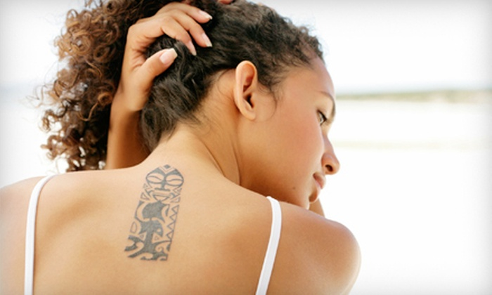 Skin Laser Center - Mar Vista/West LA: Three Laser Tattoo-Removal Sessions on Area Up to 3, 6, or 12 Square Inches at Skin Laser Center (Up to 73% Off)