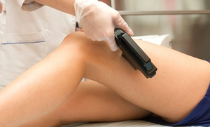 Flawless Medspa: Six Laser Hair-Removal Treatments at Flawless Medspa (Up to 87% Off). Six Options Available.