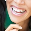 Up to 79% Off Dental Checkup Packages