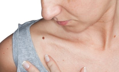 image for Up to Five Sessions of Skin Tag Removal at My Body Essentials (Up to 61% Off)
