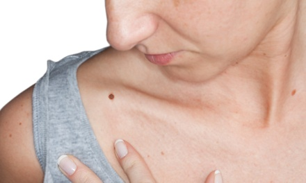 Mole or Skin Tag Removal