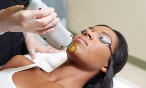 Mobile Medical Clinic: Laser Hair Removal at Mobile Medical Clinic (Up to 89% Off). Seven Options Available.