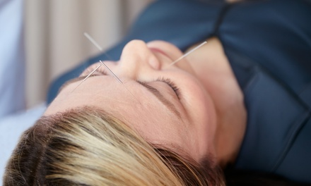 Up to 86% Off Acupuncture at weMED Wellness Center of Integrated Medicine