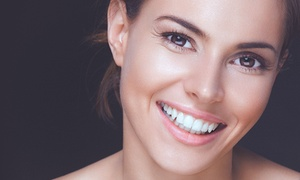 Lotus Dental Care: $25 for Home Teeth-Whitening Kit with Dental Exam, X-ray, and Cleaning at Lotus Dental Care ($300 Value)