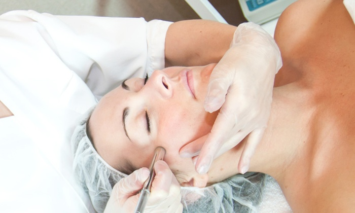 Aquamarine Esthetic Clinic - Verona: Up to 80% Off Microdermabrasion sessions at Aquamarine Esthetic Clinic