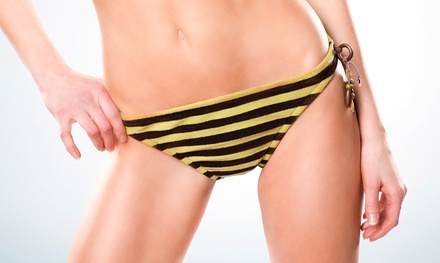 4, 8, or 10 Ultrasonic-Cavitation Treatments at Slender SpaMed (Up to 96% Off)