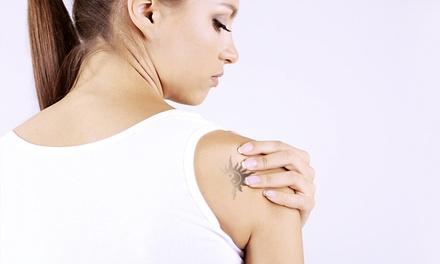 Una o 3 sedute con laser per la rimozione di macchie cutanee o tatuaggi