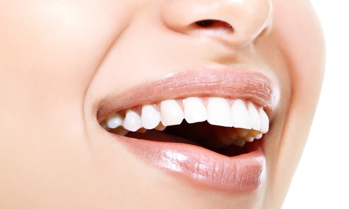Integrity MediCenter - MediSpa - Integrity MediCenter - MediSpa: $79 for Teeth Whitening at Integrity MediCenter - MediSpa ($149 Value)