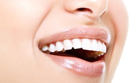 $79 for Teeth Whitening at Integrity MediCenter - MediSpa ($149 Value)