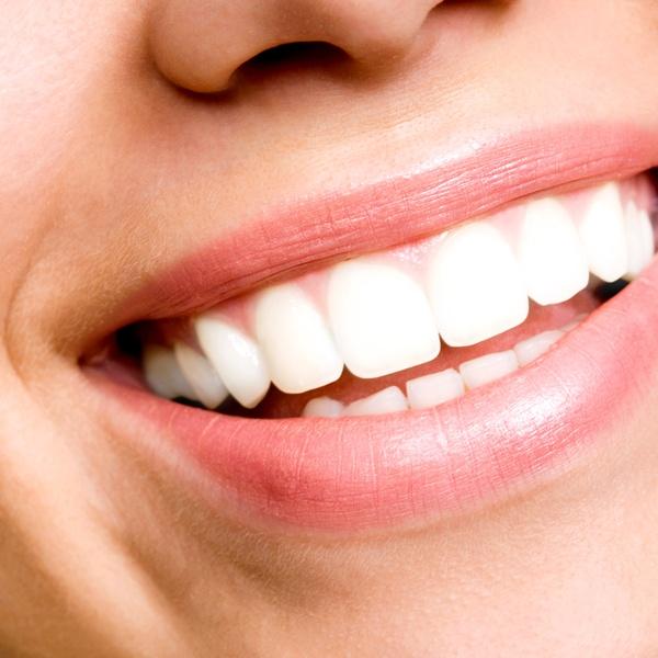 Teeth Whitening Kit Mcarthur Dental Centre Groupon